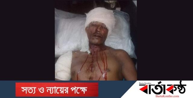হবিগঞ্জের বাহুবলে যৌতুক লোভী জামাই'র হামলায় শশুরসহ ৩ জন আহত